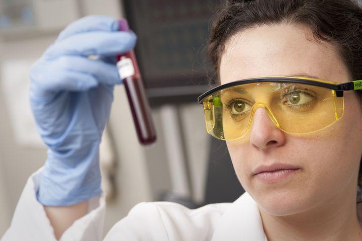анализы на токсоплазмоз