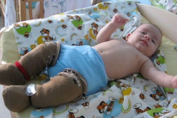 Парафинотерапия для ног для детей