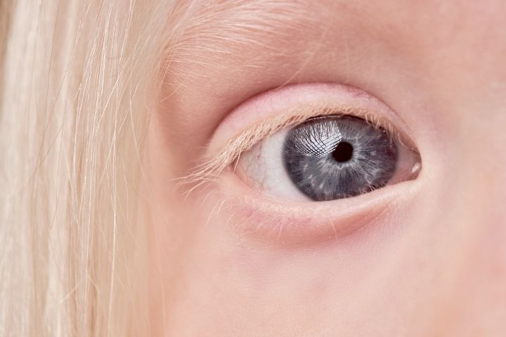 Красные глаза альбиноса у ребенка