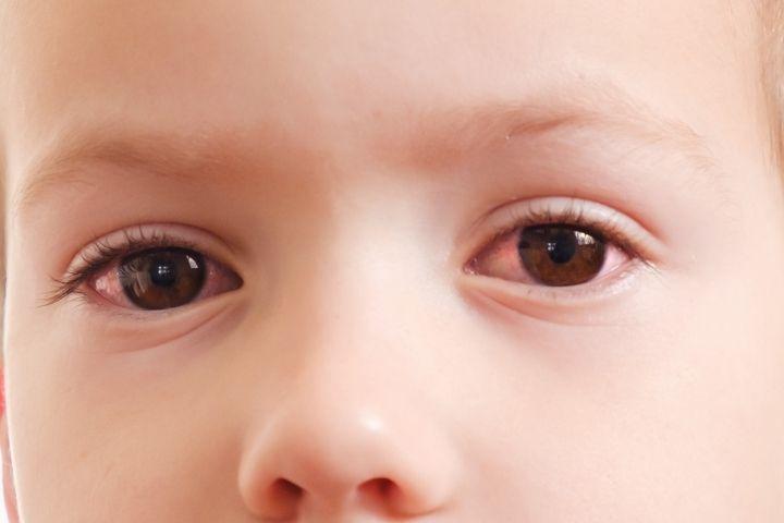 Красные белки глаз у ребенка