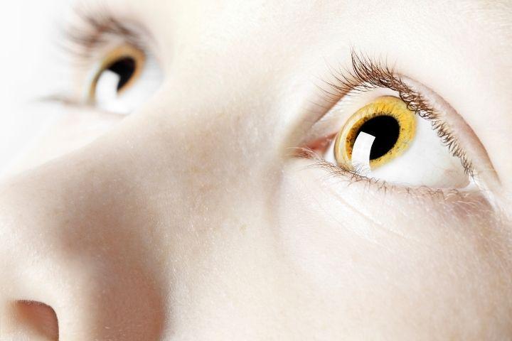 Желтые глаза у ребенка